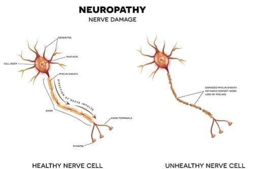 Disability Benefits for Neuropathy