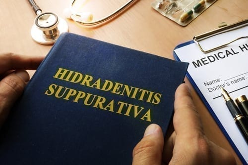Social Security Disability for Hidradenitis suppurativa